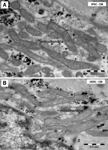 Electron microscopy shows clusters of long and slender mitochondria in HFK-iPSC-CM (A) and hESC-CM (B). SR: sarcoplasmic reticulum; gly: glycogen granules; Z: Z band.