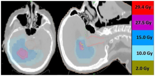 Representative screenshots depicting isodose distributions of a plan delivered to a single intact brain metastasis with conformal avoidance of the brainstem. The prescription does was 27.5 Gy in five fractions.