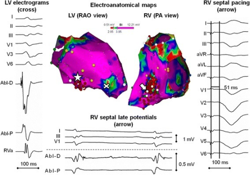 The bipolar voltage map of both ventricles in sinus rhythm. An atypical range (2–4 mV) for color-coding was used to highlight the areas of subtle reduction of bipolar voltages. The cross denotes the left ventricular apicoseptal region of abnormal electrograms where the endomyocardial biopsy was taken. The arrow indicates the site with a maximum stimulus-to-QRS interval at the right-sided interventricular septum. The asterisk shows the site of the pacemap for the clinical tachycardia at the left-sided interventricular septum site with normal electrograms.