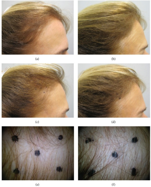 Subject 47. The number of terminal and vellus hairs at baseline (left) increased significantly after 90 days of treatment (right). The 4 cm2 target area of the scalp is shown in the middle and bottom rows.