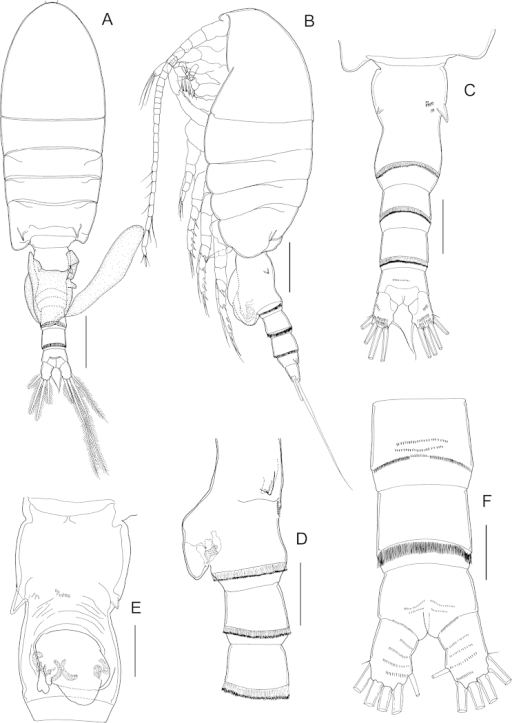 Stephosprojectus sp. n., female paratype. A habitus, dorsal view B habitus, lateral view C fifth pedigerous somite and urosome, dorsal view D urosome, lateral view E genital double-somite, ventral view F second urosomal somite to caudal rami, ventral view. Scale bars: A, B = 200 μm; C, D = 100 μm; E, F = 50 μm.