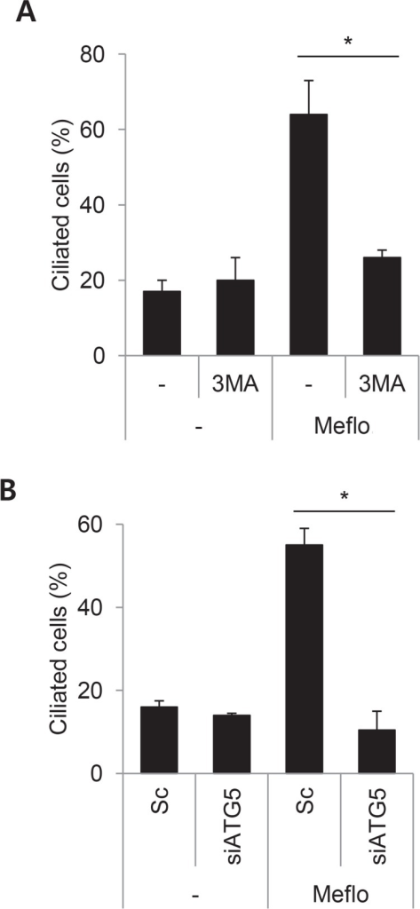 Autophagy mediates mefloquine-induced elongation of primary cilia in htRPE cells. (A) htRPE/Smo-GFP cells pre-treated with 3MA (5 mM) for 12 h were further incubated with Meflo (10 μM) for 24 h. Ciliated cells were counted under a fluorescence microscope. (B) htRPE/Smo-GFP cells transfected with Sc or siATG5 were further treated with Meflo (10 μM) for 24 h. Ciliated cells were counted under a fluorescence microscope. Data were obtained from at least three independent experiments, and values are presented as the means ± S.E.M. (*p<0.05).