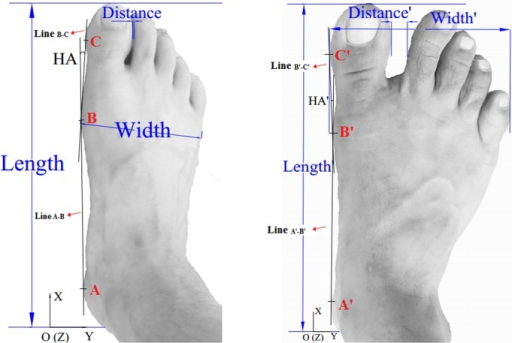 The dorsal view of foot surface data, length (length'), width (width'), minimal distance (distance') and HA (hallux angle, HA').Three landmarks were drawn to connect line A-B (A'-B') and line B-C (B'-C'), with A (A') in medial calcaneous, B (B') in the head of the first metatarsophalangeal joint and C (C') in the hallux.