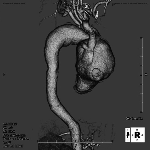 Preoperative computed tomography showing giant ascending aortic aneurysm with the dimension of 79 mm in size and severely compressed SVC