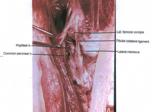popliteal artery; common peroneal nerve; lateral femoral condyle; fibular collateral ligament; lateral meniscus