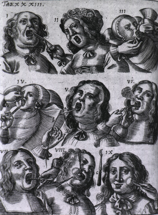 <p>Palate and tongue surgery in nine vignettes.</p>