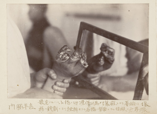 <p>A photograph showing a hand that suffered severe frostbite and gangrene, with a missing index finger and missing skin from other fingers.  Russo-Japanese War photographic album.</p>