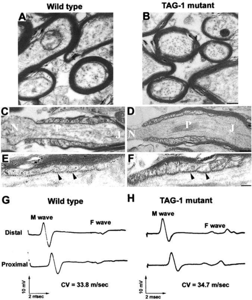 Ultrastructural organization of myelinated fibers and nerve function in TAG-1 mutant mice. (A–F) Ultrastructural organization of myelinated fibers. Myelin sheath thickness and compaction were similar in myelinated fibers of the ventral spinal cord region of 3-mo-old (A) wild-type and (B) TAG-1 mutant mice. The nodal (N), paranodal (P), and juxtaparanodal (J) regions appeared properly organized in longitudinal sections of wild-type (C) and mutant animals (D). In the paranodal region, the transverse bands (arrowheads) were normally present in both genotypes (E, wild type; F, mutant). Bars: (A and B) 0.1 μm; (C and D) 0.5 μm; and (E and F) 0.3 μm. (G and H) Electrophysiological studies of sciatic nerves. CMAPs and F waves were recorded after distal and proximal stimulation of sciatic nerves of 2-mo-old (G) wild-type and (H) TAG-1 mutant mice. There were no differences in the waveform, latencies and amplitudes of CMAPs between both genotypes.