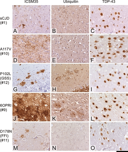 Prion protein (PrP), ubiquitin and TAR-DNA binding protein-43 (TDP-43) staining in sporadic and inherited prion diseases. (A–C) sCJD with synaptic PrP deposition, very little punctate ubiquitin deposits and normal TDP-43 labelling. (D,G,J,M) Inherited prion diseases with various types of prion protein deposits. (D–F) A117V mutation with diffuse, synaptic deposits, again with no marked ubiquitin deposition and no TDP-43 abnormalities. (G–I) GSS with P102L mutation shows marked ubiquitin aggregates in and around plaques. (J–L) Case of six-octapeptide-repeat insertion (144-bp insert) with abundant, dense prion protein deposits, mainly presenting with 'primitive' plaques (J), which are accompanied by ubiquitin aggregates (K), but no changes in TDP-43. (M–O) FFI with diffuse PrP plaques (M), no ubiquitin and no TDP-43 abnormalities. Numbers below the disease type indicate case numbers (see Table 1). Scale bar 100 µm for all images except C, I, F, L and O for which the scale bar is 50 µm.