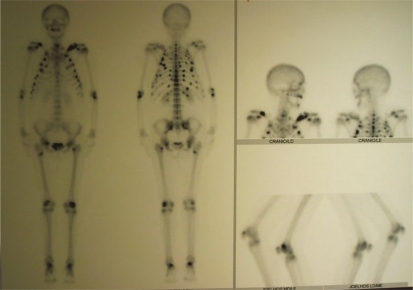 Bone scintigraphy on patient: multiple areas of osteogenic reaction