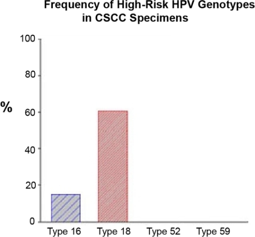 Prevalence of high-risk HPV genotypes in conjunctival squamous cell carcinoma by real-time RQ PCR assay.Tumor DNA extraction was performed using Pico Pure DNA Extraction kit. The viral DNA of 4 HPV genotypes were determined using a TaqMan-based real-time quantitative PCR analysis. Type-specific primers and probes for HPV types 16, 18, 52 and 59 were selected to target genome segments of the E6/E7 region and synthesized by Applied Biosystems. RNase-P as endogenous control for each sample (in duplicate) was applied in this assay. Amplification results from the endogenous control were used to normalize the amplification results from the target HPV types. Finally, Ct, ΔCt, ΔΔCt, RQ and gene expression plots were generated by the ABI 7500 Fast System SDS Software (Version 1.4).
