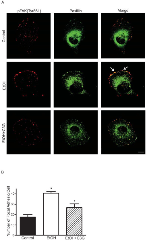 Effects of C3G on ethanol-mediated formation of focal adhesions. MDA-MB231 cells were treated with ethanol (0 or 400 mg/dl) with/without C3G (40 μM) for 48 h. Cells were seeded on fibronectin-coated coverslips for 3 h. A: The expression of paxillin (Alexa Fluor 488) and phosphorylated FAK (Tyr861) (Alexa Fluor 594) were detected by immunofluorescent staining. Arrows indicate the co-localization of p-FAK (Tyr861) and paxillin. Scale bar = 5 μm. B: Focal adhesions were counted randomly on 10 or more cells. The number of focal adhesions per cell was calculated. Each datum point was the mean ± SEM of three independent experiments. * denotes a significant difference from untreated controls. # denotes a significant difference from ethanol-treated groups.