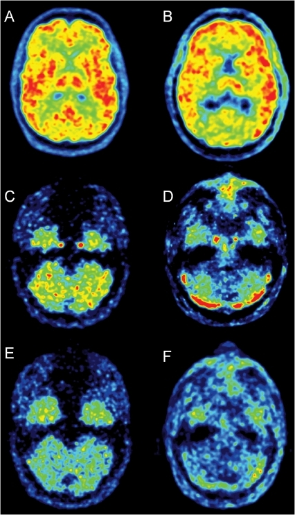 Transaxial slices from a [11C](R)-rolipram brain scan of a healthy volunteer and from a simulated study using a digital phantom.Upper row: [11C](R)-rolipram images across the thalamus summed over the whole duration of the scan from a phantom (A) and a healthy volunteer (B). The phantom images are realistic and quite similar to those from the real subjects. The external rim of activity surrounding the brain, in both the subject and the phantom, is scalp activity. Middle row: images summed over the first two minutes at the carotid level. The carotids are well visible near the temporal lobes for both the phantom (C) and the healthy volunteer (D). The regions of high activity visible in the lower part of the cerebellum of the subject (D) are the cerebellar venous sinuses (not simulated in the phantom studies). Bottom row: late images (three summed frames taken at about 1 hour after injection) from a phantom (E) and a subject (F). At late times the carotids are not well visible anymore and the spill-over effect from surrounding tissues becomes more important.