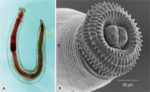 Image of the advanced third stage larva of Gnathostoma spinigerum harvested from the investigated eel's liver. (A) Whole larva. (B) Close up of the head bulb.
