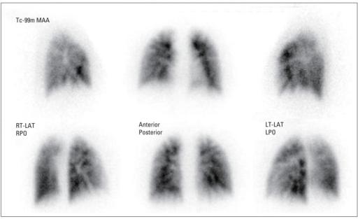Lung perfusion scan showing multiple wedge-shaped perfu   Open-i