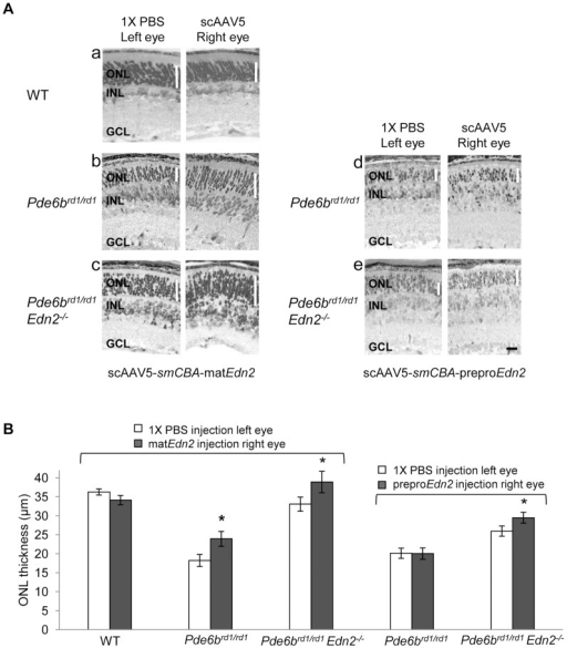 scAAV5-mediated transfer of the mature Edn2 cDNA at PN8 increases mutant PR survival.(A) Micrographs showing ONL thickness in individual retinas at PN14–15. (a) Injection of the scAAV5-smCBA-matEdn2 vector into WT retinas at PN8 did not alter retinal morphology at PN15. (b) Injection of the scAAV5-smCBA-matEdn2 vector at PN8 increased PR ONL thickness of Pde6brd1/rd1 retinas by 31% (n = 9; *p<0.05) at PN15, and (c) of Pde6brd1/rd1; Edn2−/− retinas at PN14 by 18% (n = 5; *p<0.05). (d) In contrast, injection of the scAAV5-smCBA-preproEdn2 vector at PN8 had no effect on PR ONL thickness of Pde6brd1/rd1 retinas (n = 6;p>0.05) at PN15, although (e) this vector improved PR survival in Pde6brd1/rd1; Edn2−/− retinas by 14% (n = 6; *p<0.05). (B) A bar graph summarizing the effects of AAV vectors expressing Edn2 cDNAs, injected at PN8, on mutant PR survival in Pde6brd1/rd1 and Pde6brd1/rd1; Edn2−/− retinas at PN14–15. ONL, outer nuclear layer; INL, inner nuclear layer; GCL, ganglion cell layer. (Black bar = 25 µm). Error bars indicate SEM.
