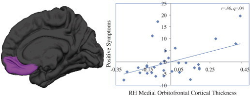 Relationship between increased cortical thickness in the right medial orbitofrontal cortex and positive symptom severity in 22q11DS. Medial orbitofrontal cortical thickness and positive symptoms are residuals, with effects of age and sex regressed out.
