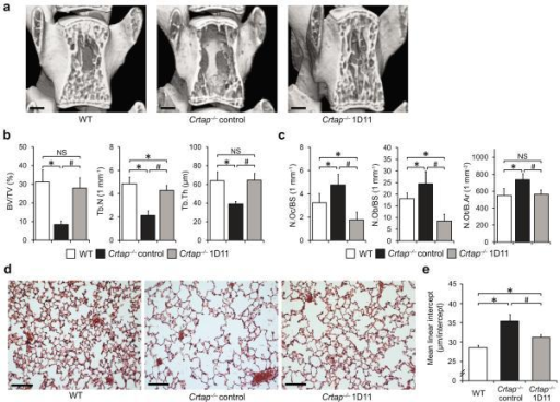 Phenotypic correction of Crtap−/− mice after treatment with the TGFβ neutralizing antibody 1D11. (a) MicroCT images of L4 vertebral bodies of 16-week-old wildtype (WT), control antibody-treated Crtap−/−, and 1D11-treated Crtap−/− mice after treatment for 8 weeks (scale bar=500μm). (b) MicroCT analysis results of L4 vertebral bodies for bone volume/total volume (BV/TV), trabecular number (Tb.N) and trabecular thickness (Tb.Th) in WT, control Crtap−/− and 1D11 treated Crtap−/− mice. Results are shown as means±SDs, n=8 per group. (c) Histomorphometric analysis of L4 for osteoclast (N.Oc/BS) and osteoblast (N.Ob/BS) numbers per bone surface, and numbers of osteocytes per bone area (N.Ot/B.Ar) in WT, control Crtap−/− and 1D11 treated Crtap−/− mice. Results are shown as means±SDs, n=6 per group. (d) Hematoxylin/eosin staining of inflated lungs of 16-week-old wildtype (WT), control Crtap−/−, and 1D11-treated Crtap−/− mice after treatment for 8 weeks. Representative images of n=8 mice per group are shown (scale bar=100 μm). (e) Quantification of the distance between alveolar structures by the mean-linear-intercept (MLI) method in lungs of WT, control Crtap−/− and 1D11-treated Crtap−/− mice. Results are shown as means±SDs, n=8 mice per group, 10 images analyzed per mouse. *P<0.05 for Crtap−/− vs. WT, #P<0.05 for Crtap−/− 1D11 vs. Crtap−/− control. NS, not significant.