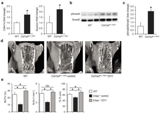 Inhibition of upregulated TGFβ signaling improves the bone phenotype in a mouse model of dominant OI (Col1a2tm1.1Mcbr). (a) Quantitative RT-PCR of TGFβ target genes Cdkn1a and Serpine1 in calvarial bone of P3 WT and Col1a2tm1.1Mcbr mice. Results are shown as fold change of the mean of WT group±SD; n=3 per group. (b) Western blot analysis showing activated Smad2 (pSmad2) relative to total Smad2 protein in P3 calvaria of WT and Col1a2tm1.1Mcbr mice; n=3 per group. (c) Quantification of the Western blot seen in b. Results are shown as fold change of the mean of WT group±SD. (d) MicroCT images of L4 vertebral bodies of 16-week-old wildtype (WT), control antibody-treated Col1a2tm1.1Mcbr and 1D11-treated Col1a2tm1.1Mcbr mice after treatment for 8 weeks (scale bar=500 μm). (e) MicroCT analysis results of L4 vertebral bodies for bone volume/total volume (BV/TV), trabecular number (Tb.N) and thickness (Tb.Th) in WT, control Col1a2tm1.1Mcbr and 1D11 treated Col1a2tm1.1Mcbr mice. Results are shown as means±SDs, n=6 per group. *P<0.05 for Crtap−/− vs. WT, #P<0.05 for Crtap−/− 1D11 vs. Crtap−/− control. NS, not significant.
