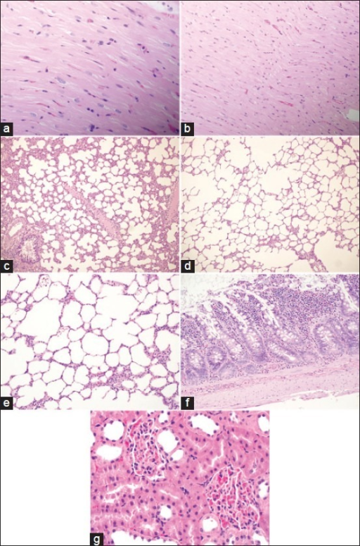 Light micrographs of multiple organs from hemorrhagic shocked rats treated with aminoguanidineshowing normal structure. (a and b) Heart section, H and E, ×200 and ×400. (c-e) Lung section, H and E, ×100, ×100 and ×400. (f) Intestinal section, H and E, ×200. (g) Kidney section,H and E, ×400