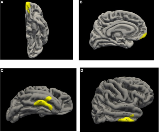 Significant thickness clusters displayed over the pial surface reconstruction of FREESURFER's average template brain. (A,B) Inferior and medial views of the left hemisphere, show a single cluster extending over the medial, ventral and polar orbito-frontal cortex. (C,D) Inferior and lateral views of the right hemisphere show a larger cluster occupying the middle inferior temporal neocortex, over the inferior temporal gyrus, the inferior temporal sulcus and part of the middle temporal gyrus. Key: STG, superior temporal gyrus; MTG, middle temporal gyrus; ITG, inferior temporal gyrus; FG, fusiform gyrus; PHG, parahippocampal gyrus; SFG, superior frontal gyrus; GR, gyrus rectus; MOG, medial orbital gyrus.