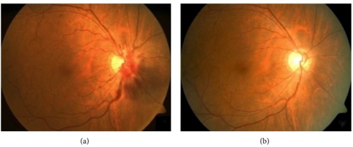 (a) Intraretinal hemorrhages over a right swollen optic disc associated with peripapillary hemorrhages, an area of subretinal hemorrhage inferonasally and venous tortuosity consistent with CRVO. (b) Spontaneous resolution of right optic disc swelling, peripapillary subretinal hemorrhage, and CRVO after two months.