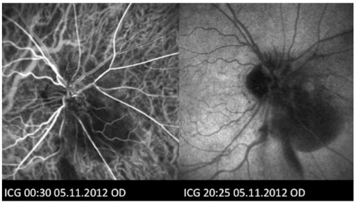 Indocyanine green angiography (ICGA) of the right eye showing absence of hyperfluorescent polyps to suggest the presence of polypoidal choroidal vasculopathy (PCV).