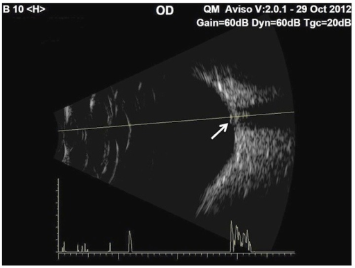 B-scan (low gain) of the right optic disc showing moderately high reflectivity consistent with surface ODD (arrow).