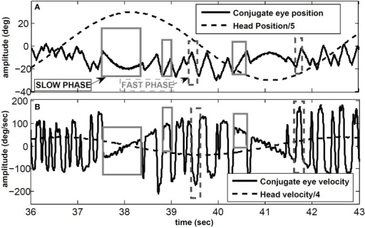 Vor In Response To Sinusoidal Head Rotation Recorded Wi Open I