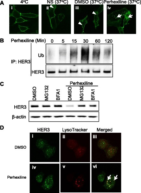 Perhexiline promotes cell surface-expressed Flag-HER3ΔNLS2 receptor internalization and the ubiquitination-mediated degradation of HER3 receptors through lysosome and proteasome. (A) Cell surface-expressed Flag-HER3ΔNLS2 receptors are internalized upon perhexiline treatment. HEK293 cells transfected with Flag-HER3ΔNLS2 were incubated with the anti-FLAG antibody on ice for 30 minutes (i) and subsequently incubated at 37°C for 1 hour untreated (ii) or in the presence of DMSO or perhexiline (10 μM) (iii, iv). Cells were fixed and localization patterns of Flag-HER3ΔNLS2 were visualized using confocal microscopy. Internalized Flag-HER3ΔNLS2 vesicles were shown as indicated by arrowheads in DMSO-treated cells whereas arrows indicate large puncta of internalized receptors in perhexiline-treated cells. (B) Perhexiline induces HER3 ubiquitination. MDA-MB-468 cells were treated with perhexiline (10 μM) for the indicated time. The endogenous HER3 was immunoprecipitated and the amount of ubiquitination and total HER3 were detected using the anti-ubiquitin and HER3 antibodies, respectively. (C) Perhexiline-induced downregulation of HER3 is blocked by proteasome and lysosome inhibitors. MDA-MB-468 cells were treated with DMSO, MG132 (10 μM), or BFA1 (30 nM) in the absence or presence of perhexiline (10 μM) for 8 hours. The endogenous HER3 was detected by the anti-HER3 antibody. (D) Perhexiline induces the redistribution of endogenous HER3 to the lysosome. MDA-MB-468 cells treated with DMSO (i to iii) or 10 μM perhexiline (iv to vi) for 2 hours were fixed and analyzed using confocal microscopy. The localization of HER3 and the lysosome was visualized using the anti-HER3 antibody (green) and LysoTracker (red), respectively. Co-localization of HER3 (green) with lysosome (visualized by LysoTracker Red) was observed in perhexiline-treated cells as yellow puncta marked by arrows. DMSO, dimethyl sulfoxide; EGFR, epidermal growth factor receptor; HER3, human epidermal growth factor receptor 3.
