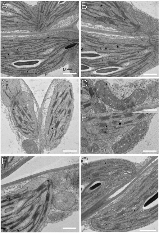 Transmission electron microscopic images of chloroplasts and mitochondria in 15-day-old leaves from PRORP1 RNAi mutants and wild-type plants.(A, B) Ultrastructure of chloroplasts and mitochondria in wild-type cells. For easy organelle identification, a chloroplast (P) and a mitochondrion (M) are labeled. (C-E) Ultrastructure of chloroplasts and mitochondria in cells of the strong PRORP1 RNAi mutant line RNAi-2. Note smaller chloroplasts with more pronounced grana stacking and bigger, more elongated mitochondria. (F) Ultrastructure of chloroplasts and mitochondria in line RNAi-5. (G) Chloroplast ultrastructure in the weakest RNAi line (RNAi-12). Scale bars: 1 μm.