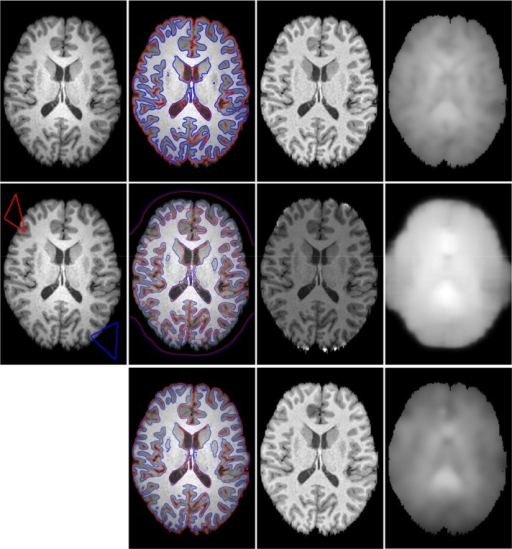 Comparisons of Li's model, LSACM and our model for MR brain image.Column 1 is the original image with red and blue initial contours. Column 2 to 4 is the final segmentation results, the corrected images and the estimated bias field images, respectively. Row 1 to 3 is the results of Li's model, LSACM and our model, respectively.