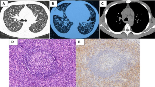 A 34-year-old man was diagnosed with multicentric Castleman disease of plasma cell variant after 11 years. He was complained of multiple superficial lymphadenopathy and intermittent low-grade fever for 11 years and exertional dyspnea for 4 months. His local multiple biopsies showed lymph node reactive hyperplasia. Short-term prednisone and repeated kinds of antibiotics were prescribed for him but his symptoms recurred. In our hospital, erythrocyte sedimentation rate (ESR) was 140 mm/h and IgG was 133 g/l, which was polycolonal. His high resolution chest CT showed multiple cysts and nodules, consolidations, diffuse bronchovascular thickening (LIP-like images) and multiple hilar and mediastinal lymphadenopathy (A-C). The fifth biopsy was tried in his left epitrochlear lymph nodes and the pathological photomicrographs showed marked interfollicular infiltration of plasma cells [D (Hematoxylin and eosin, ×200) and E (CD138 staining, ×200)]. Then he was diagnosed with Castleman disease of plasma cell variant. He and his families refused chemotherapy, but he showed up in the local clinic regularly.