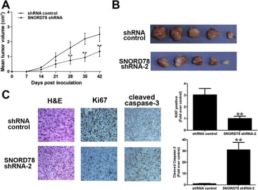 The effects of SNORD78 on in vivo tumor growth of NSCLC. Inhibition of SNORD78 suppressed tumor growth in subcutaneous implantation mouse models of H1975 cells. Tumor growth curves (a) and tumor volumes (b) of subcutaneous implantation models of gallbladder cancer are shown. (c) H&E and immunohistochemical staining demonstrated that suppression of SNORD78 inhibited the aggressive phenotype of NSCLC cells in vivo, as indicated by the expression of Ki67-positive and caspase-3-positive cells. *, p < 0.05; **, p < 0.01