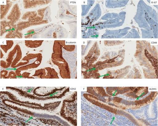 Mulitfocal alternating proliferation and cancer stem cell marker expression in a tumor with a prominent CSC-like Ad-ACA transtional zone.(A-D) Adenomatous epithelium adjacent to the invasive tumor shows prominent multifocal zones of PTEN loss and decreased Ki-67, with nuclear localization of β -catenin and decreased levels and basal membrane relocalization of CD44. (E,F) The Ad-ACA transition in another tumor shows multifocal stretches of adenomatous epithelium with loss of EZH2 and ALDH1 expression. The green arrows highlight areas where out-of-phase alternating patterns of CSC-like markers are occurring.