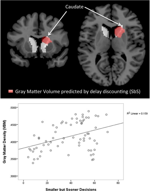 Voxel-based morphometry (VBM) Results. The top panel shows cluster with significant correlations between the delay discounting parameter SbS and gray matter volumes (controlled for gender and age) in the voxel-wise analysis (in red), superimposed by the anatomical mask for the caudate (in white); 1507 voxel in the right hemisphere, peak at [9 8 12]; According to the Harvard-Oxford Subcortical Structural Atlas [as implemented in FSL, http://www.fmrib.ox.ac.uk/fsl) thresholded at 25%] this cluster correspond to the right caudate (p < 0.001 cluster level FWE correction, p < 0.05 peak level FWE correction). The bottom panel shows the scatterplot of the correlation between gray matter density (VBM) and delay discounting.