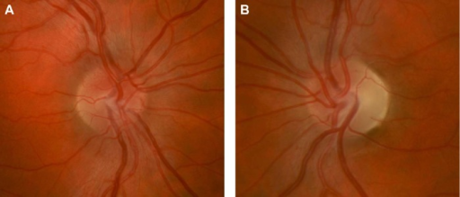 Right optic nerve (A) of a patient with acute LHON-related vision loss showing mild hyperemia, blurring of the disc margin, and elevation of the optic nerve head from swelling of the peripapillary retinal nerve fiber layer. LHON-related vision loss in the left eye had occurred 6 months prior leading to prominent temporal optic nerve pallor (B) from atrophy of the retinal nerve fiber layer.Abbreviation: LHON, Leber hereditary optic neuropathy.