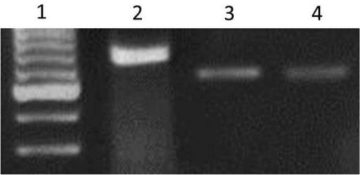 Nested –PCR amplification of KDNA extracted from skin, bone marrow, mucosa and saliva of the patient which then confirmed by sequence analysesLane 1: Molecular weight marker 100bpLane 2: L. tropicaLane 3: Patient sampleLane 4: L. major