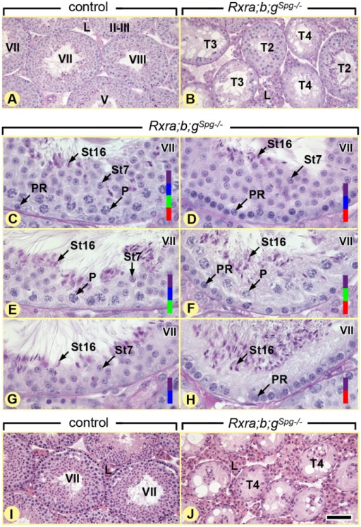 Ablation of RXR in spermatogonia induces age-related testis degeneration.(A,B) Periodic acid-Schiff stains illustrating overviews and (C-H) details of germ cell associations in the seminiferous epithelium of 12 week-old control and Rxra;b;gSgp–/– testes, as indicated. Normal gem cell associations at epithelial stage VII (C) coexist with abnormal associations mimicking, to some extent, this epithelial stage, but lacking: pachytene spermatocytes (D,H), preleptotene spermatocytes (E,G) and round spermatids (F,H). (I,J) Hematoxylin and eosin stain showing overviews of 12 month-old control and Rxra;b;gSgp–/– testes: seminiferous tubules containing only spermatogonia and Sertoli cells represent the end-stage of degeneration in the mutant testes. PR and P, preleptotene and pachytene spermatocytes, respectively; St7 and St16, step 7 and 16 spermatids, respectively; T2, tubule sections lacking generation(s) of germ cells around their entire circumference; T3, tubule sections with disorganization of the germ cell layer; T4, tubule sections containing only spermatogonia and Sertoli cells. Germ cell populations present in a given seminiferous tubule cross-section are highlighted by colored bars: red, preleptotene spermatocytes; green, pachytene spermatocytes; blue, step 7 (round) spermatids; purple, step 16 (elongated, mature) spermatids. Roman numerals indicate the stages of the seminiferous epithelium cycle. Scale bar, 80 μm (A,B and I,J) and 30 μm (C-H).