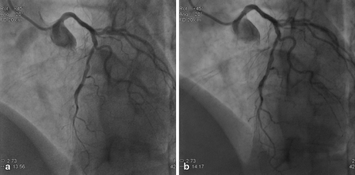 Example of a 55-year-old female (BMI 30.2 kg/m2), current smoker with a medical history of hypertension, hyperlipidaemia and a family history of premature coronary artery disease (CAD). The patient already underwent PCI (stent in LAD and RCA) and was admitted for diagnostic procedure for complaints of progressive angina without symptoms at rest. The top panel, a represents the reference image and b the study image. Cine acquisitions obtained at 15 fps, field of view 20 cm, LAO 45 CRA 20 with (a) reference cine (DAP: 60.40 mGy.cm2/frame), (b) study cine (DAP: 27.01 mGy.cm2/frame)