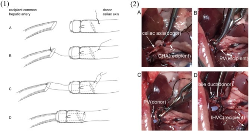 Depiction of the procedure of vessel anastomosis between donor celiac axis and recipient common hepatic(CHA).The vessel end of the recipient CHA and the donor celiac axis were placed closely to facilitate the anastomosis. (A): The first suture was performed with a length of 10–0 silk from outside to inside of the donor celiac axis and the suture was placed approximately 1 mm beyond the bracket. (B): The suture went transmurally through the anterior edge of the recipient CHA. (C): The donor celiac axis was repierced from inside to outside near the first suture point by the same thread. (D): Finally, the thread was pulled gently to guide the recipient CHA onto the donor celiac axis, and the suture was tied. Fig 3-(1) is diagram illustration showing the 4 steps of anastomosis. Fig 3-(2) shows the 4 steps with real photos of surgical procedure.