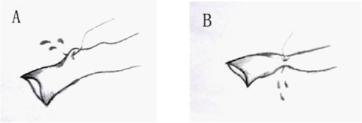 Illustrations of potential accidents during the placement of the guiding stitches.
