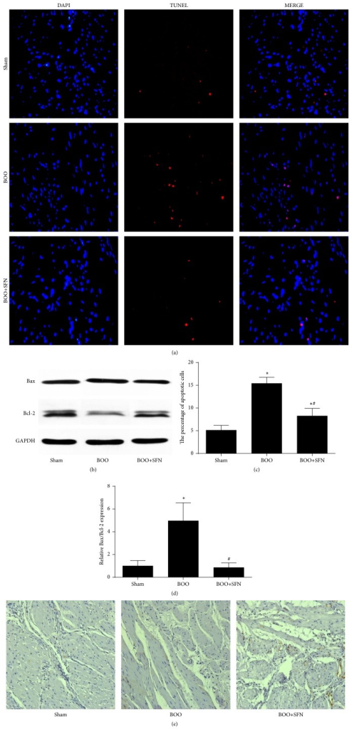 Effect of SFN on cell apoptosis and proliferation in BOO rats. (a) TUNEL staining showing the cell apoptosis level of the bladder in the three groups. Original magnification ×400. (b) The protein expression of Bax/Bcl2 ratio in the bladder of the three groups. (c) The statistical results of TUNEL staining in the three groups. ∗n = 6, P < 0.001 versus sham group. #n = 6, P < 0.001 versus BOO group. (d) The statistical results of protein expression of Bax/Bcl2 ratio in the bladder of the three groups. ∗P < 0.05 versus sham group. #P < 0.05 versus BOO group. (e) The expression of PCNA by immunohistochemical staining in the three groups. Original magnification ×200.