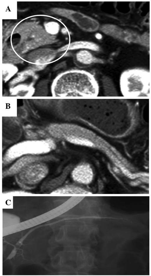 Follow-up images acquired 3 months after the initiation of steroid therapy. (A and B) Computed tomography showing that the enlargement of the pancreatic head (circle) and body had markedly improved. (C) Endoscopic retrograde cholangiopancreatography showing that the diffuse narrowing of the main pancreatic duct had fully recovered.