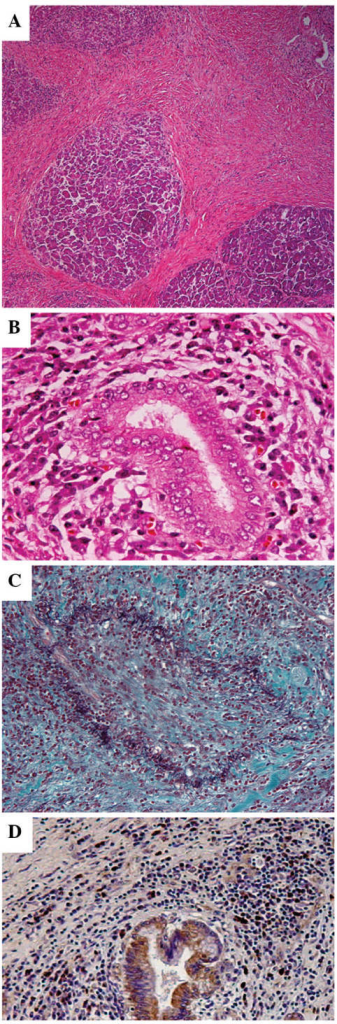 Pathological examination revealing diffuse lymphoplasmacytic infiltrate with fibrosis, periductal lymphoplasmacytic infiltrate in the pancreatic head mass: (A) ×40 and (B) ×400 magnification. (C) Elastica-Masson staining showing obliterative phlebitis in this specimen. (D) An abundance of IgG4-positive cells was observed in the lymphoplasmacytic infiltrate (>10 cells/high power field).