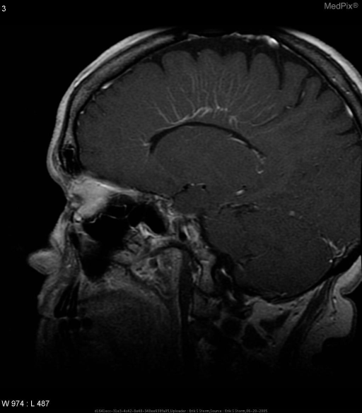 "Sagittal post-gadolinium T1 image demonstrating left pericallosal ""medusa head"" classic for developmental venous anomaly."