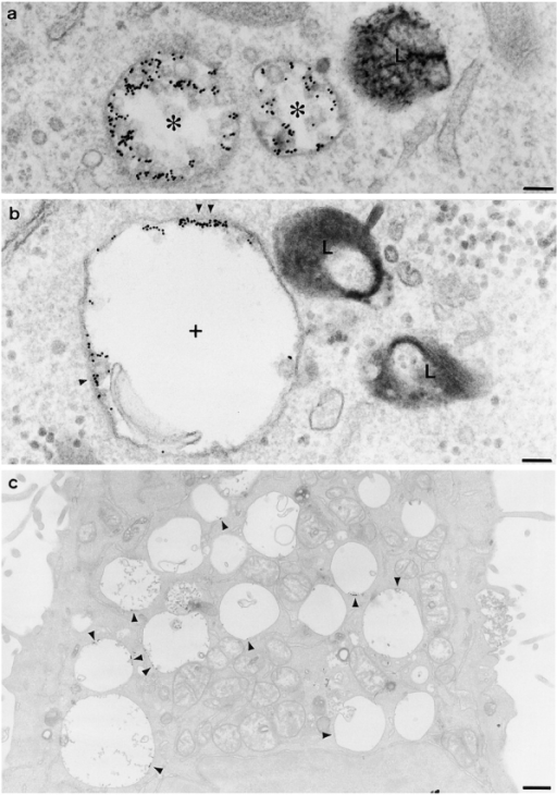 The effects of wortmannin on inward vesiculation in cells where the lysosomes have been cross-linked. HEp-2 cells were incubated with HRP for 30 min at 37°C, chased for 3 h at 37°C, and then incubated with DAB/H2O2 at 4°C to crosslink the lysosomes. Cells were then incubated with anti-EGFR gold and EGF at 20°C in the absence of wortmannin and then chased at 37°C in the absence (a) or the presence of wortmannin (b and c). Note that in the absence of wortmannin, MVBs with many internal vesicles and anti-EGFR gold predominantly on the internal vesicles accumulate (asterisks). In the presence of wortmannin, enlarged MVBs with very few internal vesicles accumulate (crosses), and the EGFR are clustered (arrowheads) on the perimeter membrane of the enlarged MVBs. L, lysosome. Bars: (a and b) 0.1 μm; (c) 0.5 μm.