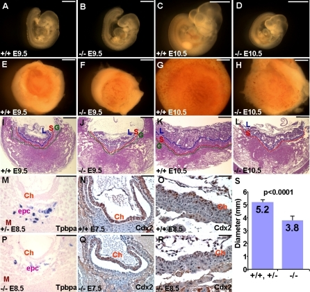 Embryonic and Extraembryonic Abnormalities Caused by SENP2 Deficiency(A–D) Whole mount analysis of the SENP2+/+ (A,C) and SENP2–/– (B,D) embryos identified growth restriction induced by the deletion of SENP2 at E9.5 (A,B) and E10.5 (C,D).(E–L) The placentas of SENP2+/+ (E,G,I,K) and SENP2–/– (F,H,J,L) were examined in whole mounts (E–H) or transverse sections (I–L) at E9.5 (E,F,I,J) and E10.5 (G,H,K,L). Labyrinth (L), spongiotrophoblast (S) and TGC (G) layers are defined by blue, red and green broken lines, respectively. Note that TGC layer is missing because of the very few cells present at E10.5 (L).(M–R) Sections of the E7.5–E8.5 extraembryonic tissues were analyzed by in situ hybridization of the ectoplacental cone (epc) marker Tpbpa (M,P) and immunostaining of the chorion (Ch) marker Cdx2 (N,O,Q,R), and counterstaining with nuclear fast red and hematoxylin, respectively.(S) The graph shows the average diameter of the control (+/+, +/–) and mutant (–/–) E10.5 placentas (p < 0.0001, n = 7). Scale bars, 1 mm (A–H); 500 μm (I–L); 300 μm (M,P); 50; μm (N,O,Q,R).