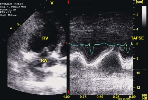 Tricuspid Annular Plane Systolic Excursion [TAPSE] in a patient with severe PAH during a vasodilatory test with epoprostenol: Left panel depicts the localization of the cursor line over the lateral portion of the tricuspid annulus on an apical view of the right heart chambers [RV: right ventricle; RA: right atrium]. On the right panel the M-mode represents displacement of the annular plane during the cardiac cycle. Main advantages of TAPSE, despite its dependency on volumetric assumptions, are that it is very easy to obtain and quite reproducible.