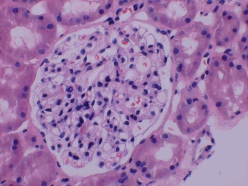 Biopsy with no transforming growth factor (TGF)-β staining